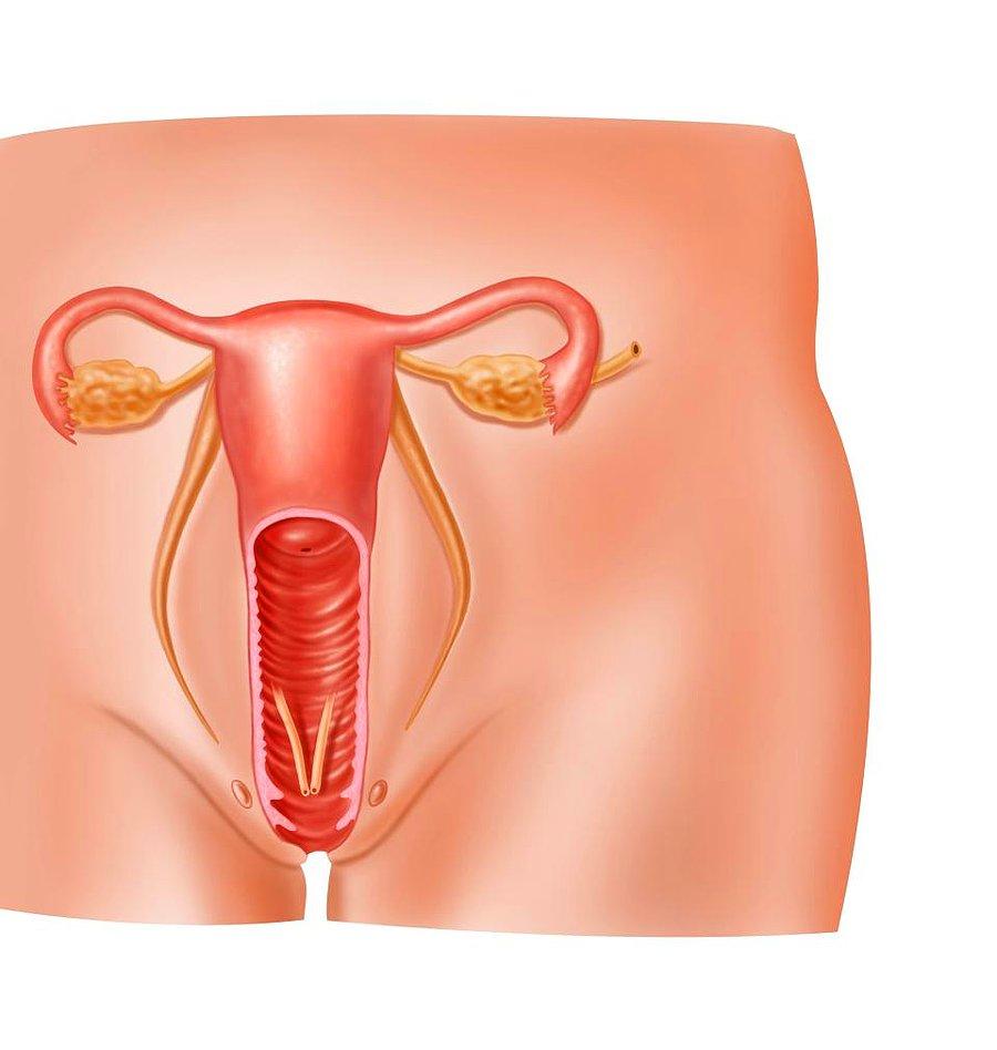 Kadınlarda Genital Bölge Mantarı